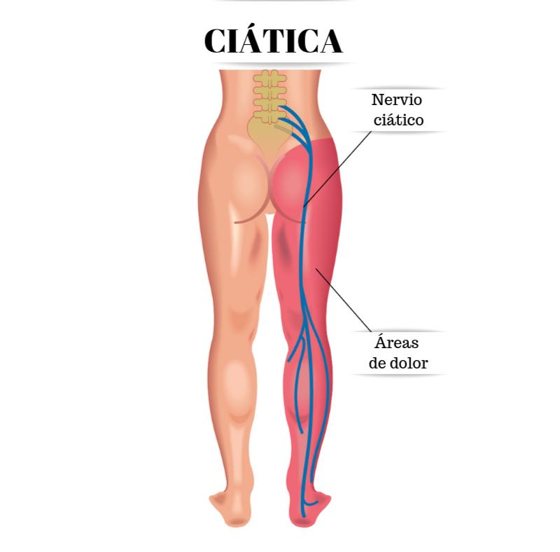 Clínica: ¿Qué es la ciática?